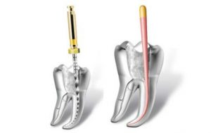 Root canal illustration image