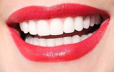 Beautiful smile image