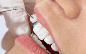Dental veneer image