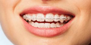 Dental braces image