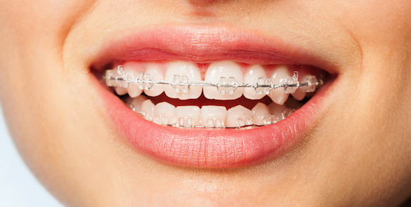 ADULT & CHILDREN'S DENTAL BRACES FROM $2995!