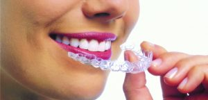 Woman with aligners image