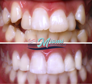 Orthodontic care before and after image