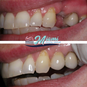 Implant before and after image