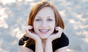 Teenager with braces image