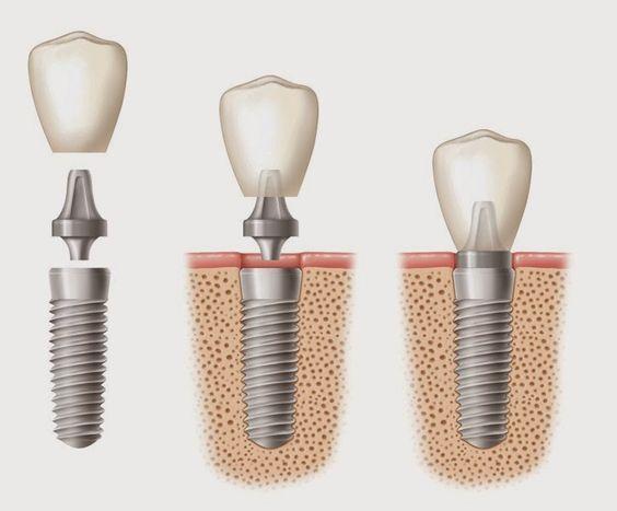 Dental implant image
