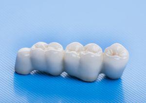 Dental bridge image