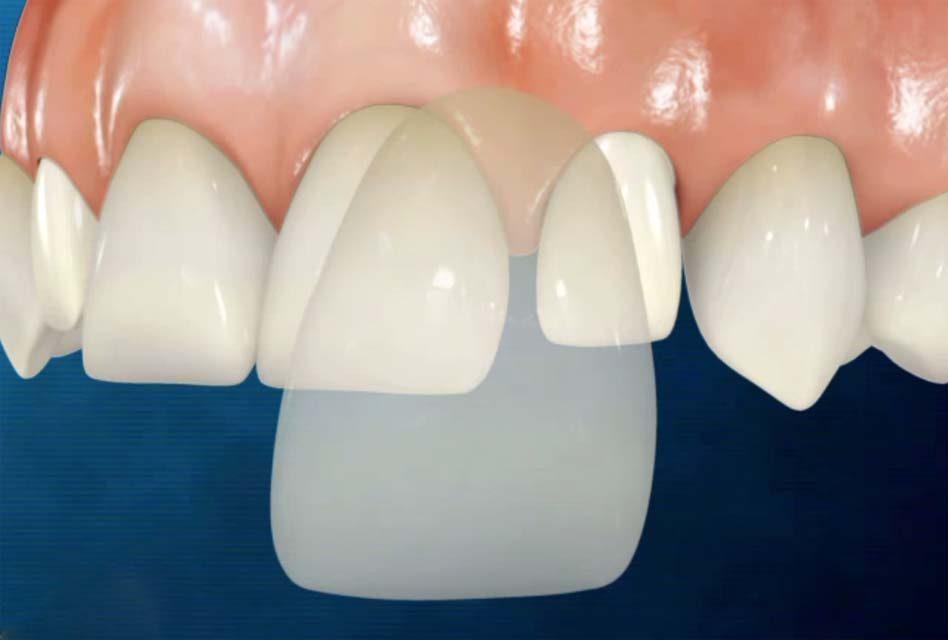 Dental veneer illustration image