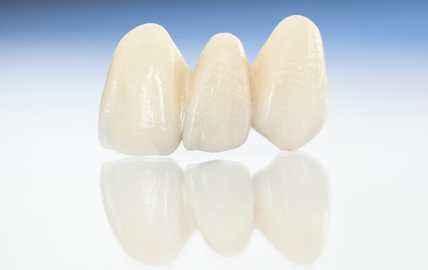 Dental partial image