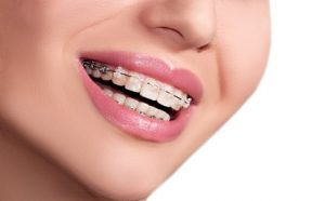 Woman with dental braces image